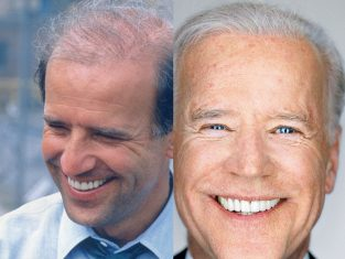 joe biden hair plugs
