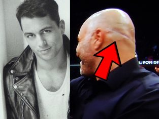 joe rogan FUT hair transplant fail