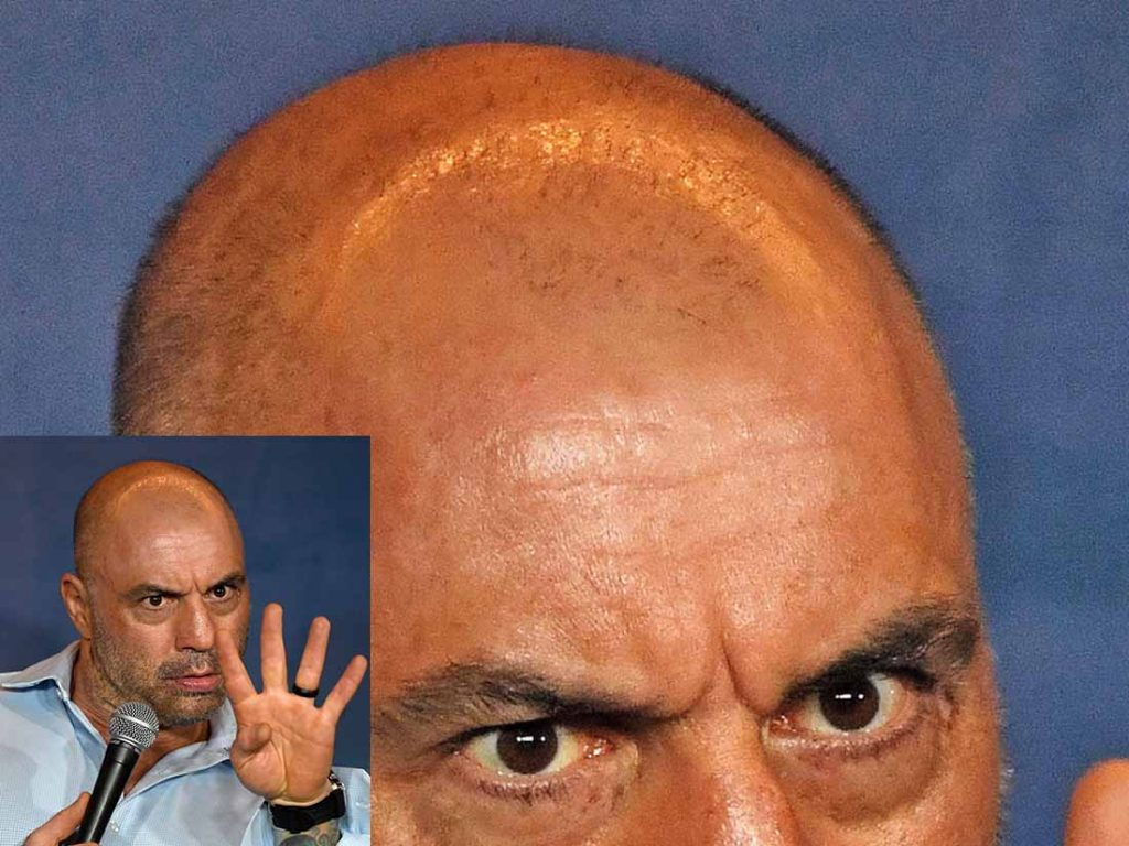 joe rogan hair transplant failed