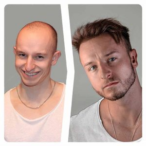 matt dominance hair transplant before and after