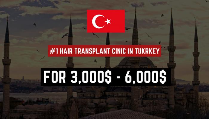 Doctor Performed Hair Transplant in Turkey